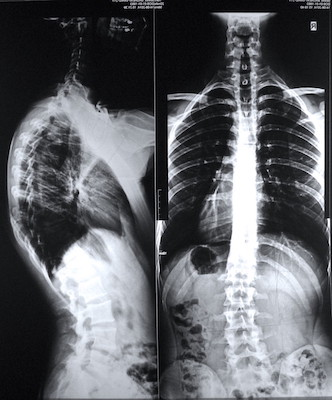 Importance of Accurate Diagnosis / Prognosis in Chiropractic Management of Scoliosis & Hyper-Kyphosis of the Spinal Column